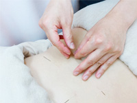 鍼治療施術の写真